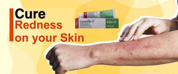 How I cured redness on skin | Candid b cream usage | Complete Review